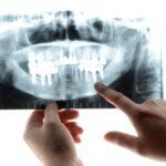 歯科衛生士はX線(レントゲン)のボタンは絶対押しちゃダメ!違法行為になってしまいます!